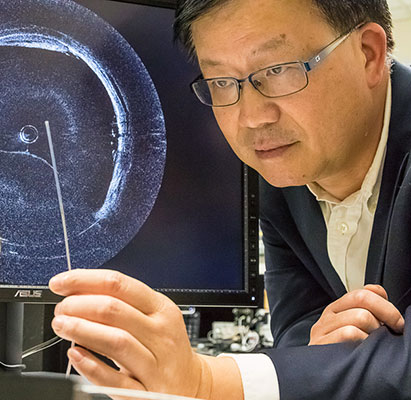 Zhongping Chen has developed a minimally-invasive, dual-modality imaging device that can effectively examine arteries for signs of vascular disease.