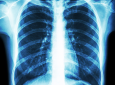 Samueli School engineers are using artificial intelligence, based on COVID-19 patients' chest X-rays, to help determine disease severity.