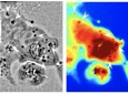 The black and white phase microscope image above helped UCI researchers identify where the squid reflectin protein nanostructures were present in human cells (dark regions, with some indicated by white arrows). The panel in color shows the associated pathlength for light traveling through a given area (red corresponds to longer pathlengths and blue corresponds to shorter pathlengths). Atouli Chatterjee / UC